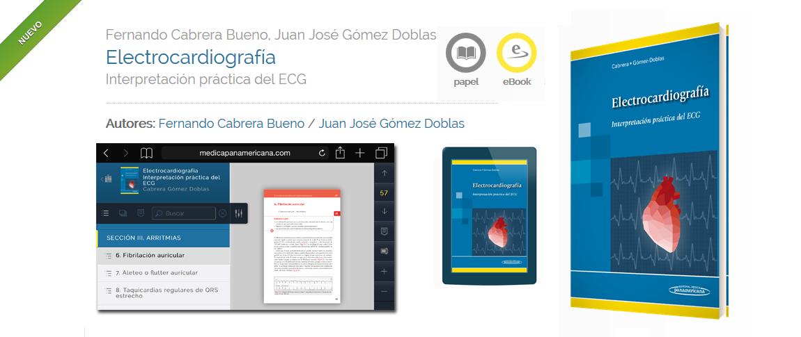 Electrocardiografia-Cabrera-Doblas-cardiologos-malaga-